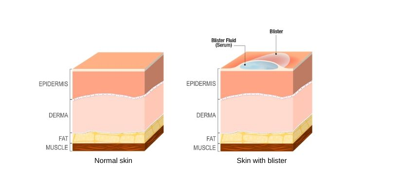 diagram of a blister and the skin