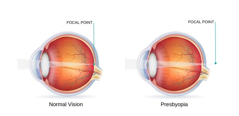 Presbyopia is an age-related condition that causes blurred vision up close
