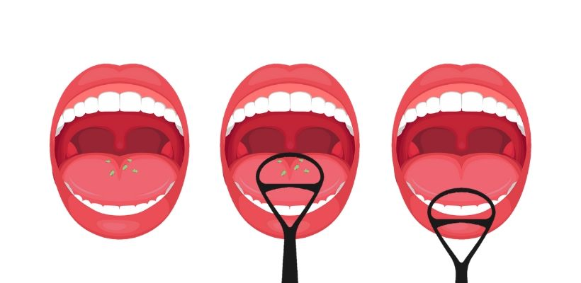 Tongue cleaning and scraping remove bacteria and food debrid that can lead to bad breath and tooth decay
