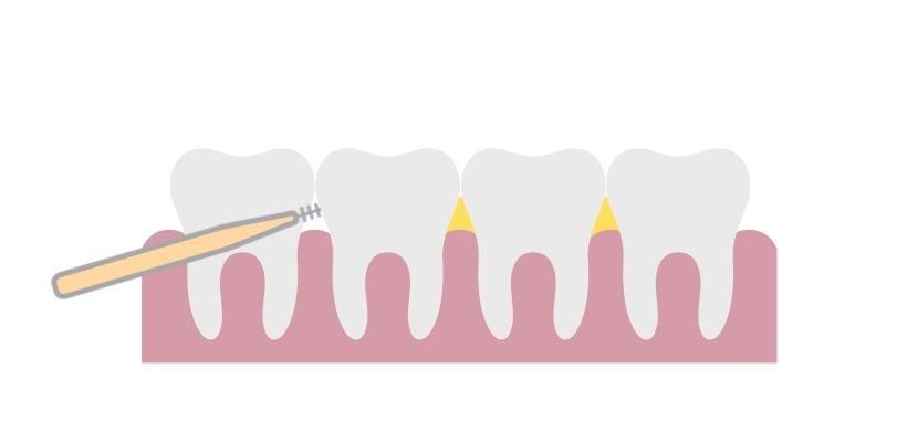 Inter-dental brushes remove plaque and good debris from the inter-dental space between the teeth